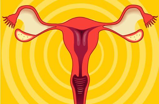 Wenn Frauen sich für einen unumkehrbaren Eingriff entscheiden