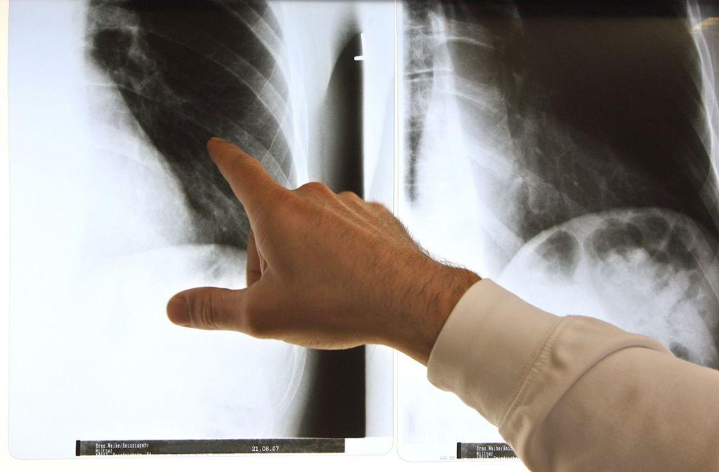 Röntgenbilder spielen beim Befund von Rheuma eine wichtige Rolle. Foto: picture alliance/dpa/Arno Burgi