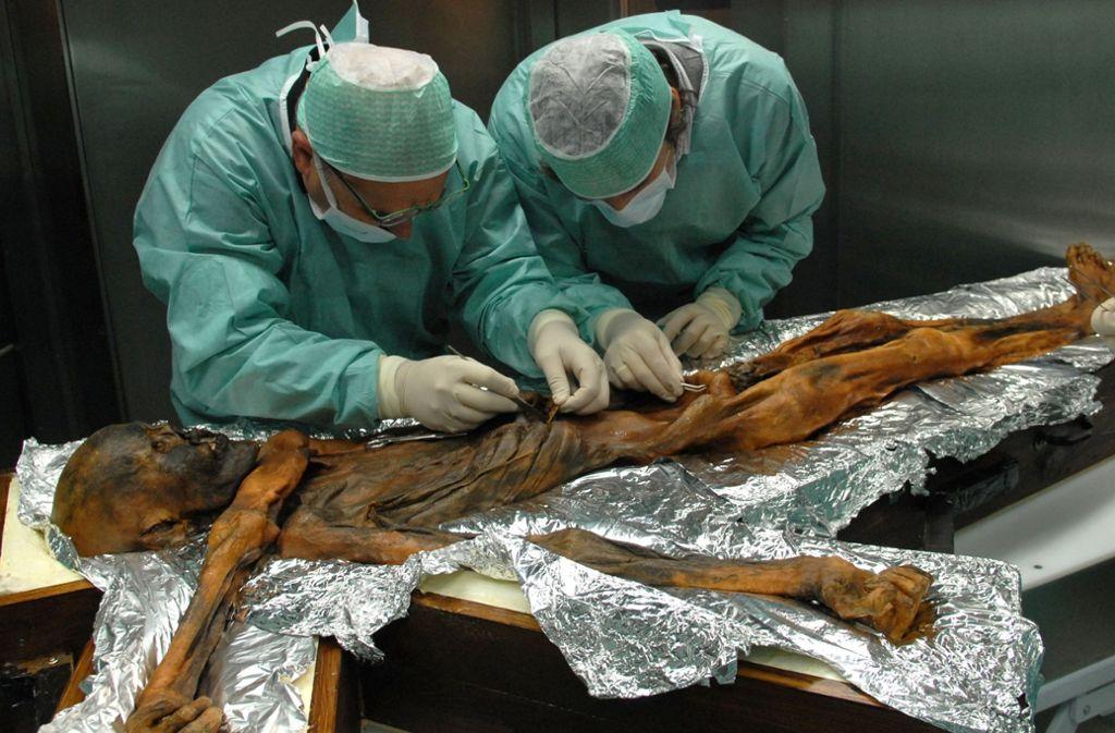 """Forscher arbeiten an  der Mumie von """"Ötzi"""", einem Vorzeitmenschen, der in den Alpen gestorben war und dessen Leichnam unter Eis über Jahrtausende konserviert war. Foto: Southtyrolarchaeologymuseum\Eura"""