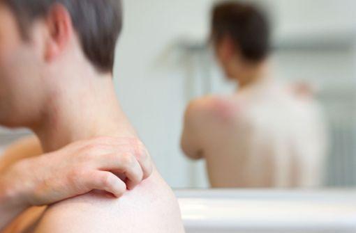 Wie man sich vor Gürtelrose schützt