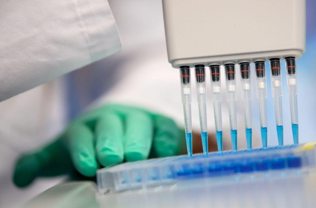 Test im Labor: In Bayern beispielsweise werden bereits Tests durchgeführt, die zeigen sollen, ob die Probanden bereits Antikörper gegen das Coronavirus um Blut haben. Foto: dpa/Sven Hoppe