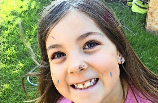 Mädchen aus Deizisau braucht Stammzellenspende