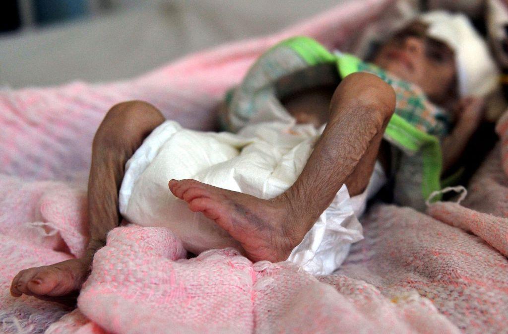 Im Jemen sind hunderttausende Kinder akut in Lebensgefahr. Foto: dpa