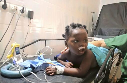 Wie Stuttgarter Ärzte kleinen Kindern helfen