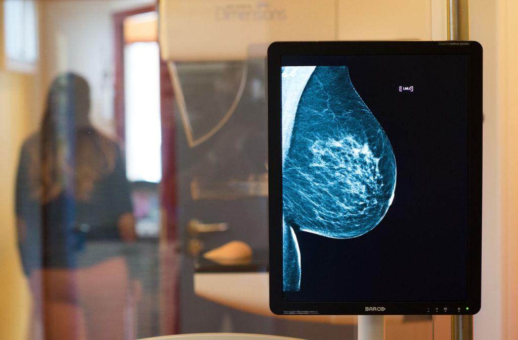 Röntgenbilder wie dieses von einer Mammografie waren im Internet frei zugänglich. Foto: dpa/Klaus-Dietmar Gabbert
