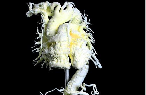 Was wie ein  Kunstwerk wirkt, ist ein gedrucktes Aorta-Modell. Foto: Uniklinik Heidelberg