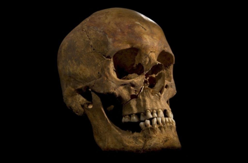 Der Schädel von Richard III. weist Schlachtverletzungen auf. Foto: dpa