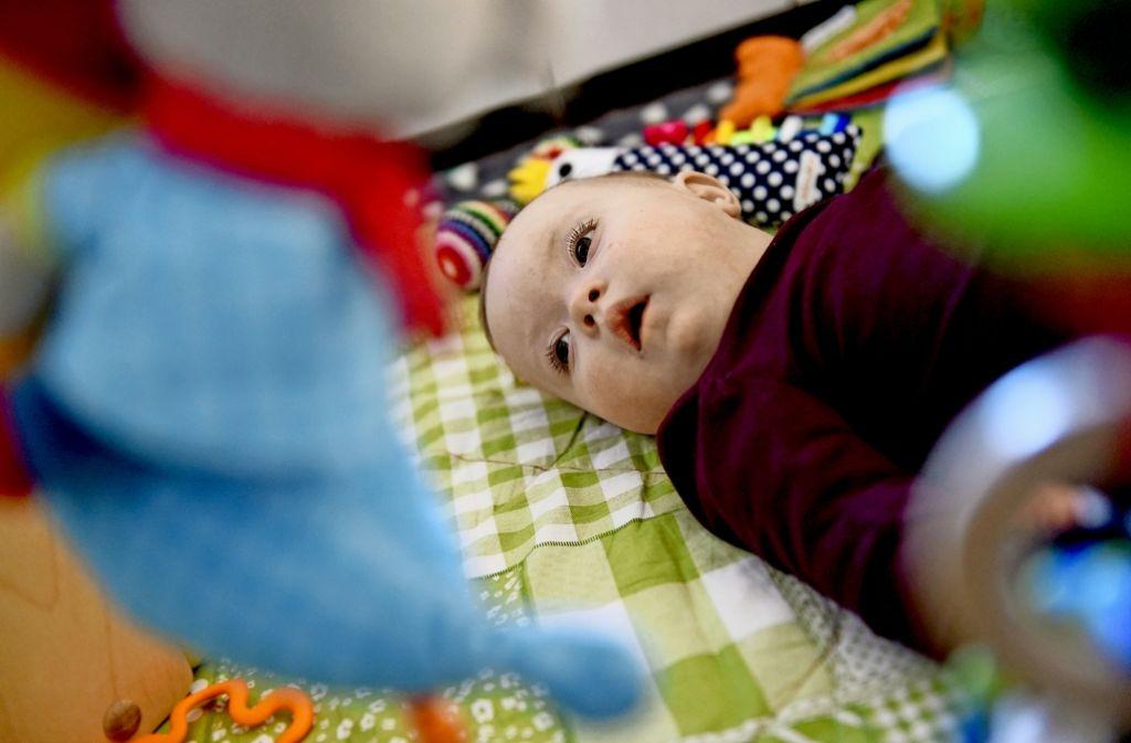 Ein einjähriges Mädchen mit Down-Syndrom. Foto: dpa