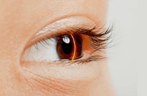 Was Laser sind – und was sie  können
