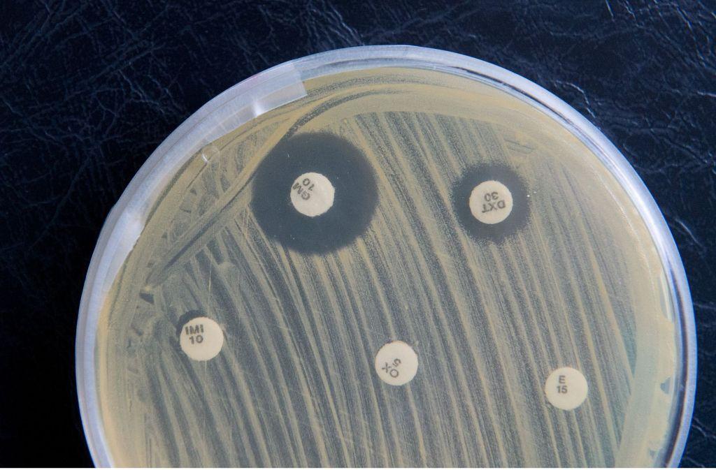 Bakterien sind überall – aber nicht alle sind schädlich. Foto: dpa