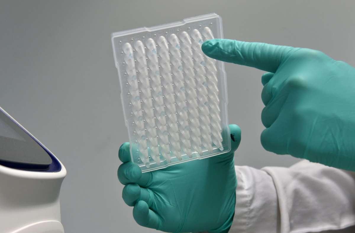 Es kommt immer wieder zu neuen Ansteckungen mit dem Coronavirus. (Symbolbild) Foto: AFP/CHRISTOF STACHE