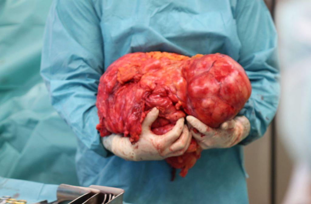 Ein Chirurg des Klinikums Altenburger Land hält einen 15 Kilogramm schweren Tumor, der unbemerkt im Bauchraum einer 63-Jährigen Thüringerin gewachsen ist, in der Hand. Die erfolgreiche Operation dauerte vier Stunden. Foto: Philipp Uwe Fein/Klinikum Altenburger Land/dpa