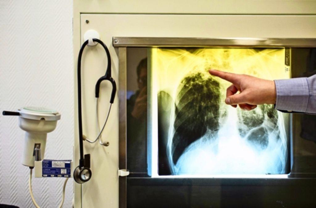 Die Tuberkulose betrifft bevorzugt die Lunge. Die Krankheit ist meldepflichtig. Foto: dpa