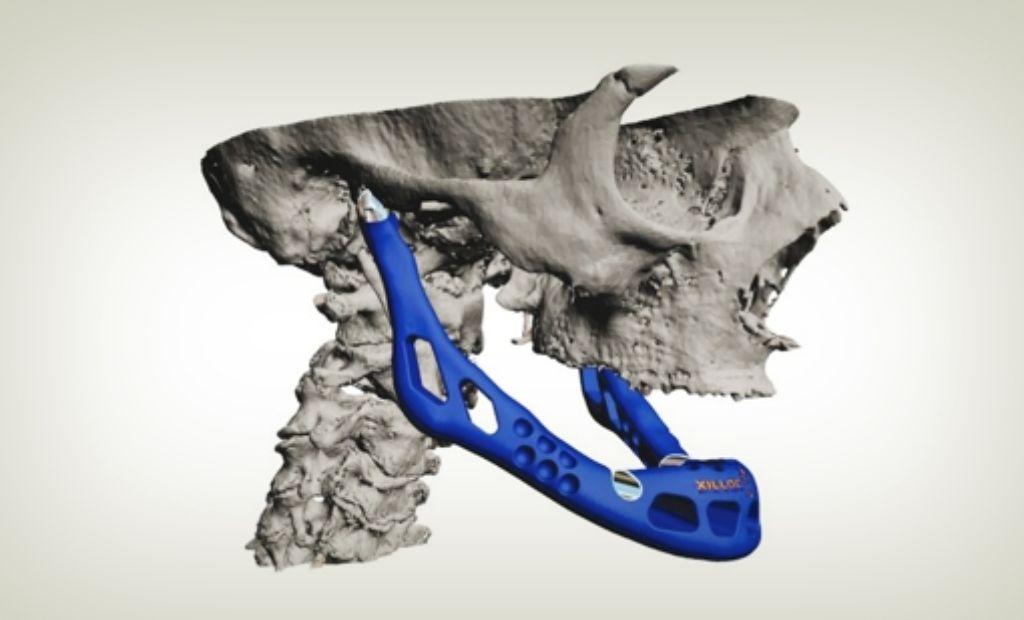 3-D-Drucker  können allerlei Prothesen herstellen, hier ein Unterkiefer-Gelenk. Foto: Layerwise