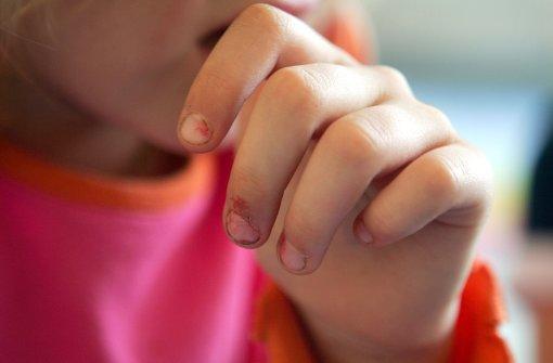 Anklage lautet auf 16-fachen sexuellen Missbrauch
