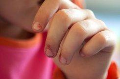 Eine Hotline für den Kinderschutz