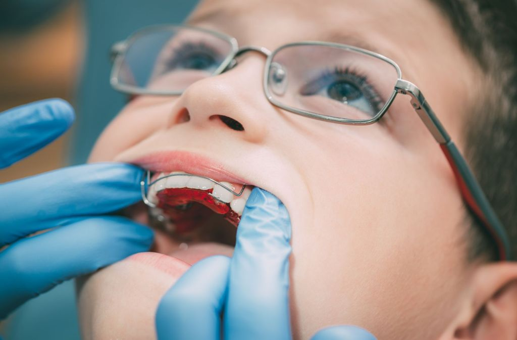 Eine Zahnspange wird angepasst. Foto: Milan Markovic/stock.adobe.com
