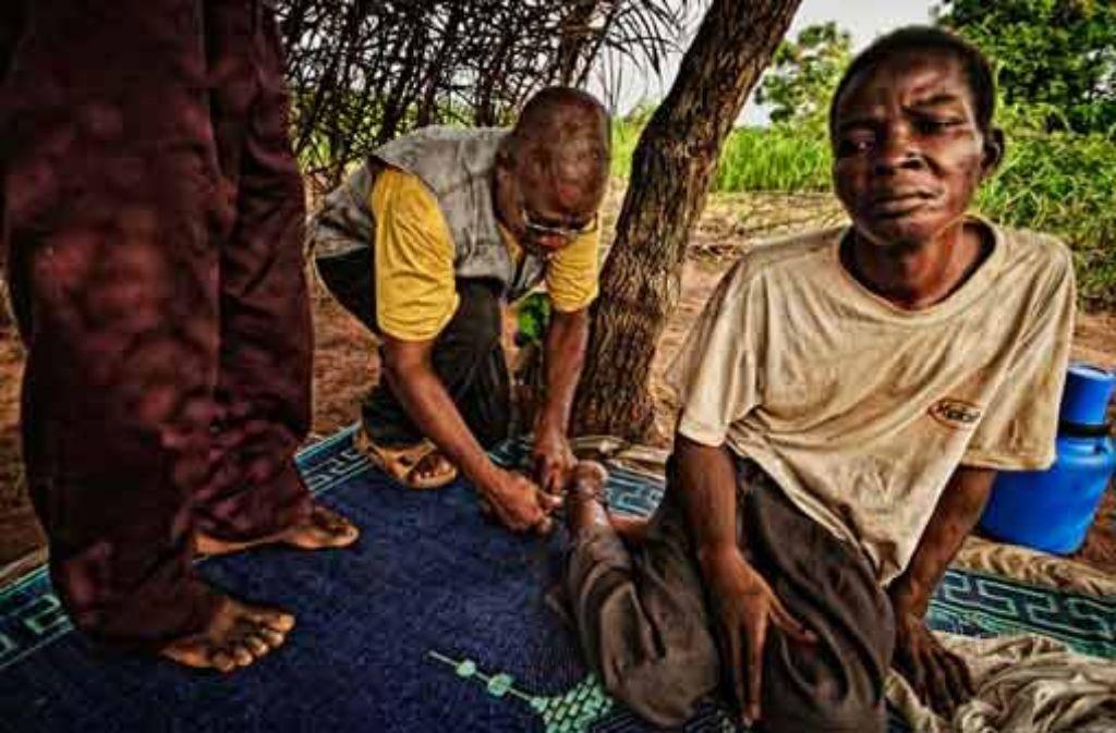 Gregoire Ahongbonong befreit die Kranken von ihren Ketten. Foto: Heiss