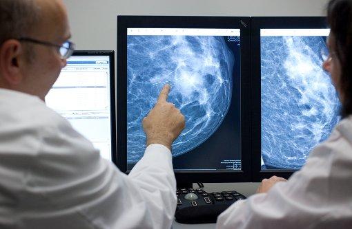 Gentests für wirkungsvollere Therapie bei Brustkrebs