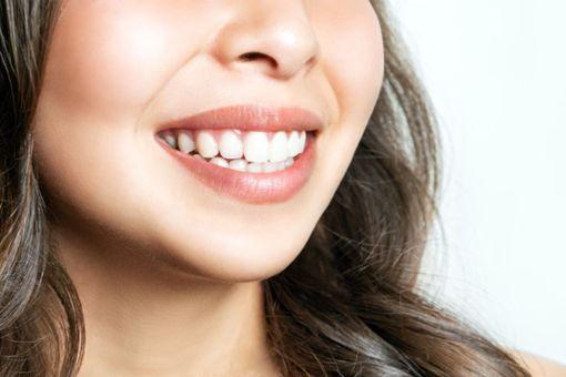 Zähne aufhellen: Hausmittel und Tipps für ein strahlendes Lächeln