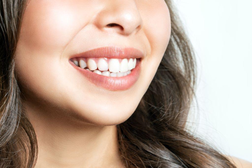 Zähne aufhellen: Hausmittel und Tipps für ein strahlendes Lächeln Foto: Aleksandr Rybalko/Shutterstock