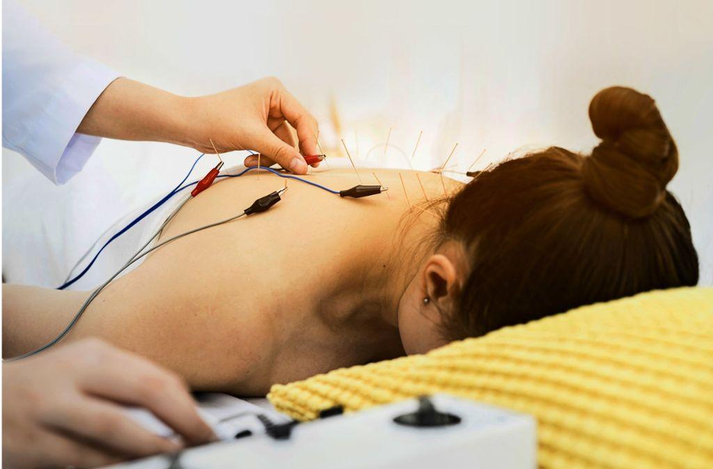 Akupunktur ist ein wichtiger Bestandteil  der chinesischen Medizin. Foto: /Adobe Stock/phat1978