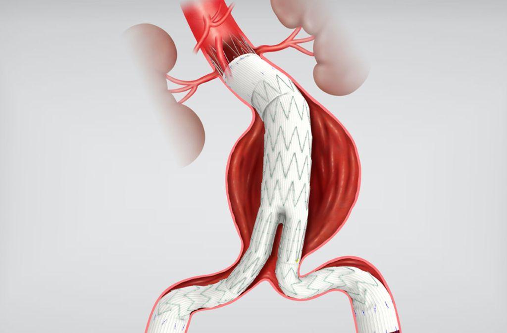 Sogenannte fenestrierten Stent-Prothesen  stützen die Gefäße von innen und verhindern so, dass sie reißen Foto: .cookmedical.com