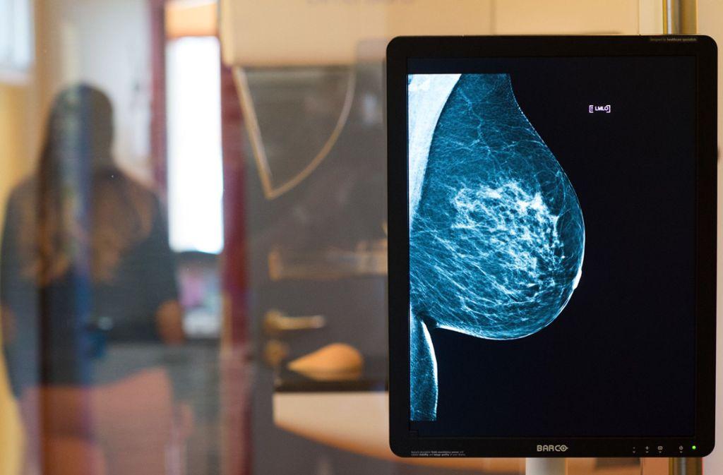 Die gesunde Brust einer Frau ist auf einer Röntgenaufnahme zu sehen. Das Röntgenbild war für einen Trailer des Mammographie-Screening-Programms, einem gesetzlichen Früherkennungsprogramms für Frauen zwischen 50 und 69 Jahren, aufgenommen worden. Foto: Klaus-Dietmar Gabbert/ZB/dpa