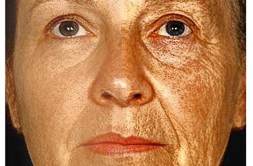 Ein Gen, das Menschen älter aussehen lässt