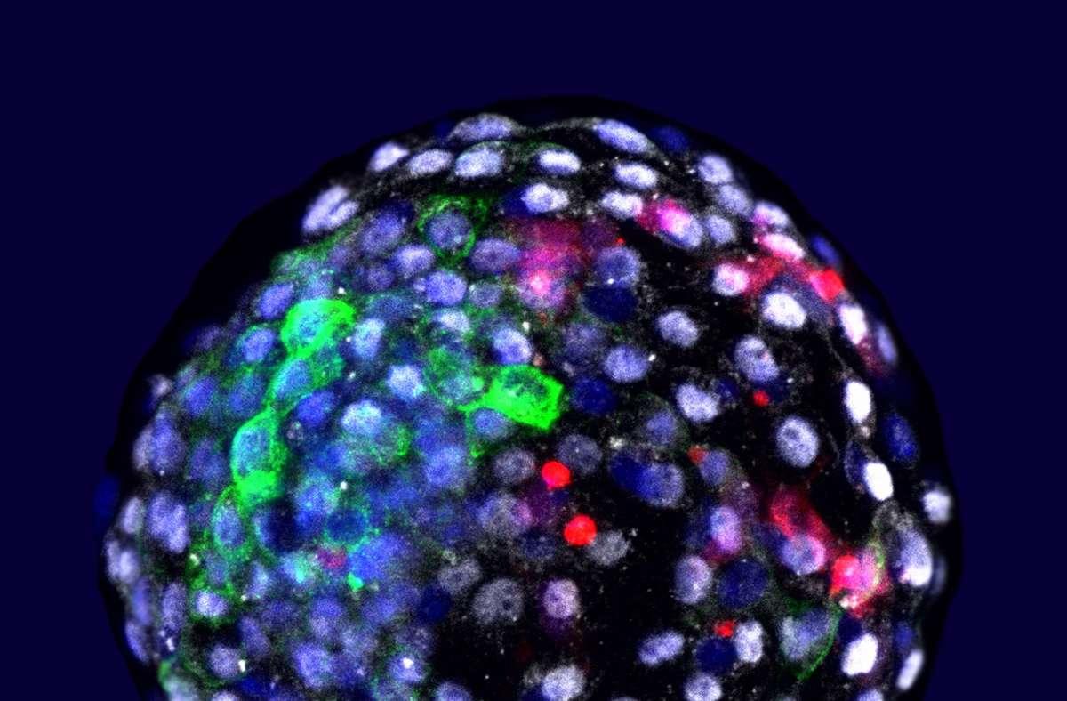 Das Bild zeigt eine Chimäre Mensch-Affe-Blastozyste. Wissenschaftler haben Embryonen aus Zellen von Mensch und Affe erzeugt. Foto: dpa/Weizhi Ji