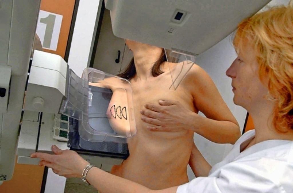 Alle zwei Jahre werden Frauen zwischen 50 und 69 eingeladen, ihre Brust röntgen zu lassen. Foto: dpa