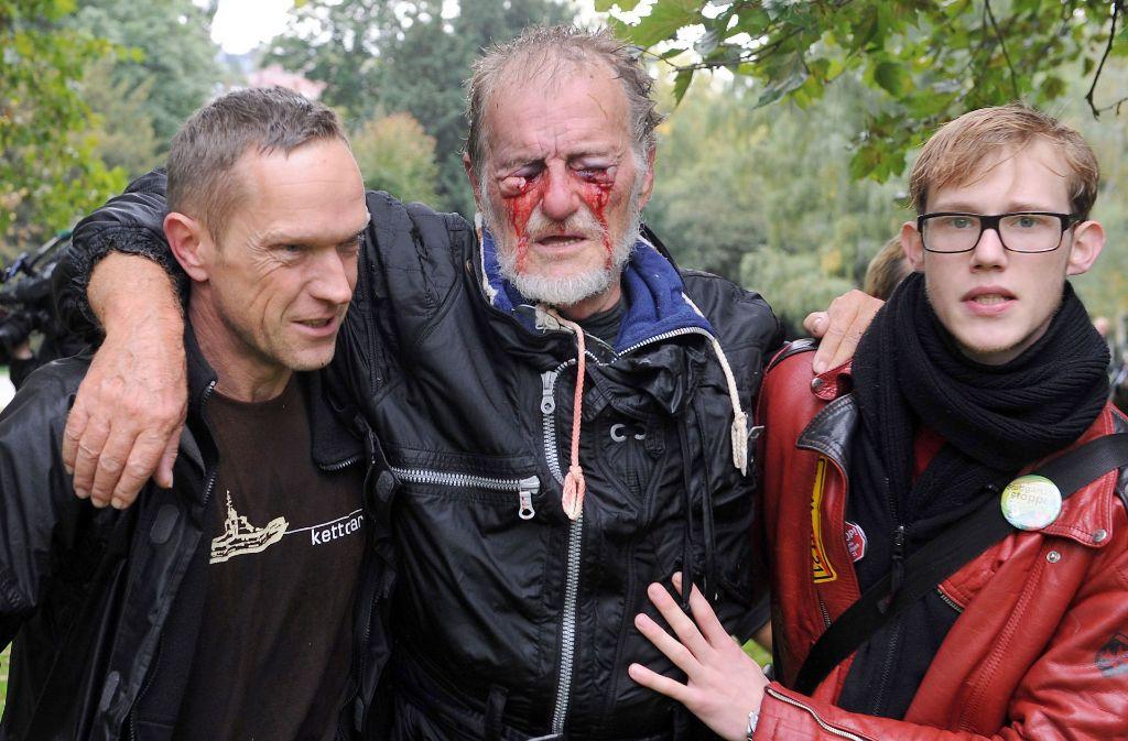 Dietrich Wagner hat ein Schmerzensgeldangebot für seine Verletzungen vom 30. September 2010 erhalten. Er soll 120000 Euro erhalten. Foto: dpa