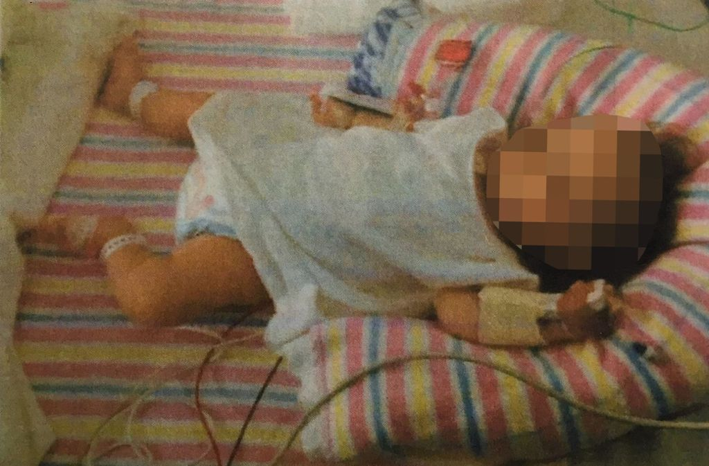 Das Mädchen war mit mehr als anderthalb Jahren erst so weit entwickelt wie normale Kleinkinder im Alter von drei Monaten. Foto: dpa