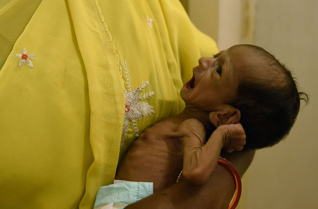 Ein unterernährtes Kind in Indien. Rund 15 000 Kinder unter fünf Jahren sterben nach Angaben der Vereinten Nationen jeden Tag auf der Welt. Foto: AFP