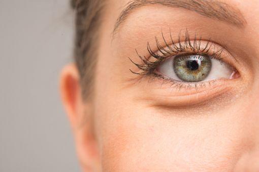 Was hilft gegen ungeliebte Tränensäcke?