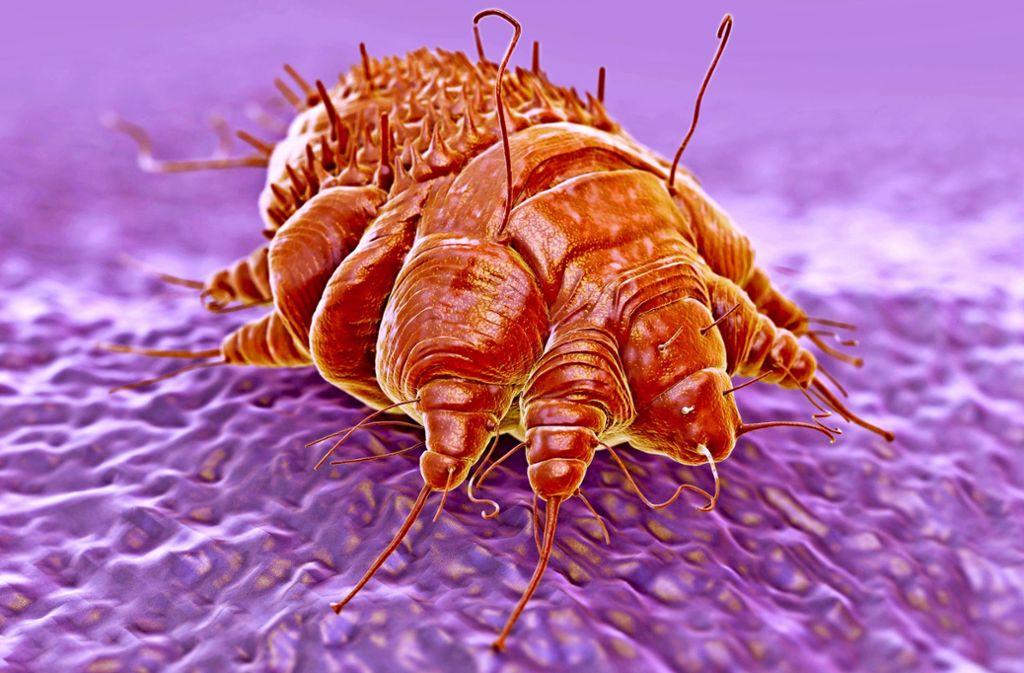 Unsympathischer Mitbewohner: die Krätzmilbe bohrt sich in die Haut ihres Wirts. Foto: Adobe Stock