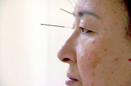 Was taugt die Traditionelle Chinesische Medizin?
