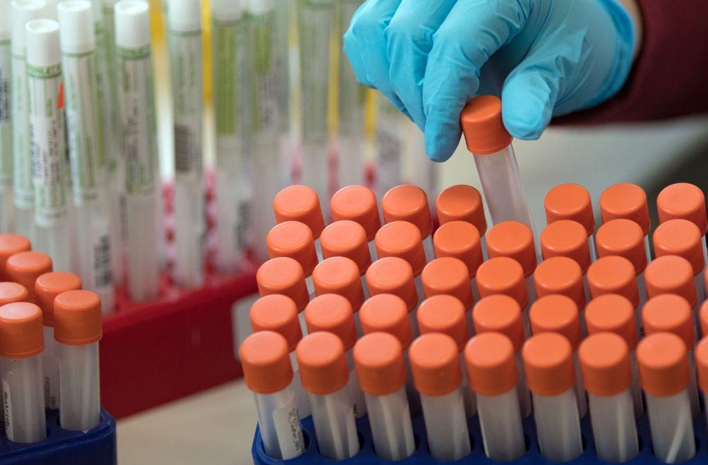 Die Corona-Tests sollen in Baden-Württemberg ausgeweitet werden. Foto: dpa/Hendrik Schmidt