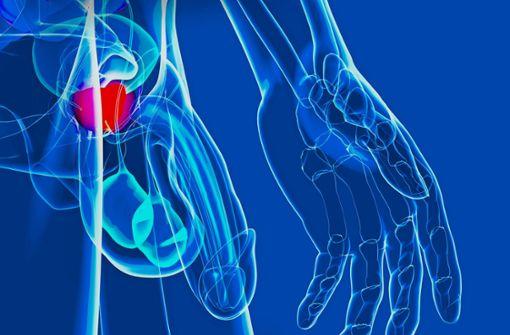 Wie Mann den Prostatakrebs überleben kann
