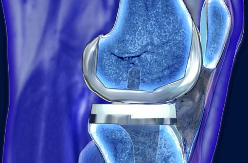 Immer mehr künstliche Kniegelenke für immer jüngere Patienten