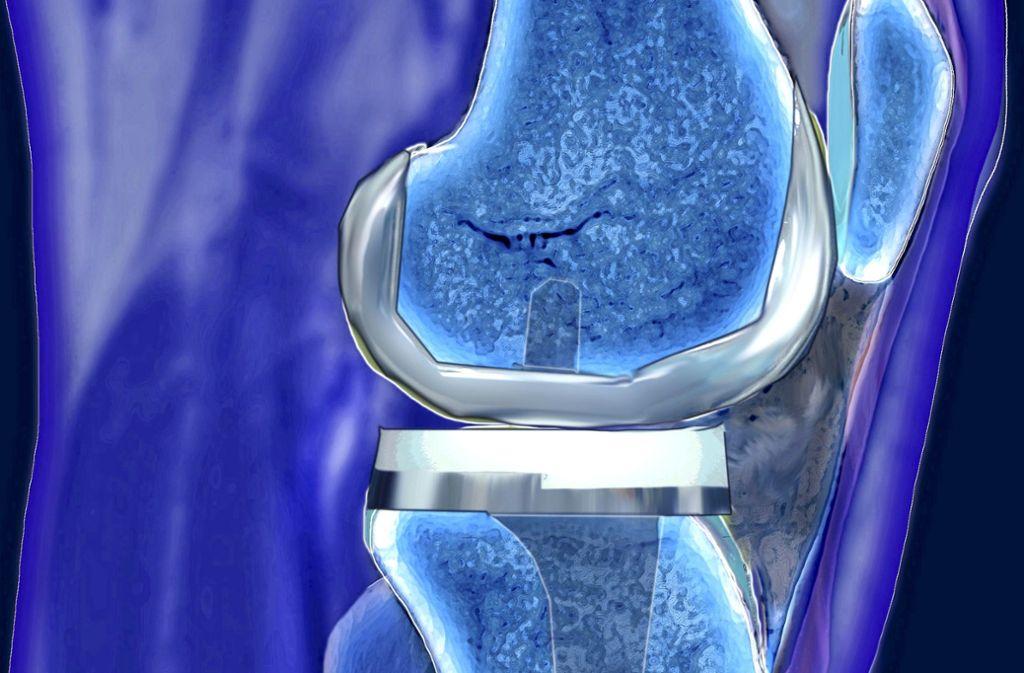 Ein künstliches Kniegelenk hält im Schnitt länger als 15 Jahre. Foto: www.mauritius-images.com