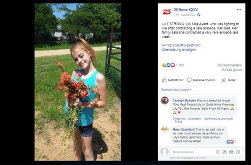 Gehirnfressende Amöbe tötet zehnjähriges Mädchen