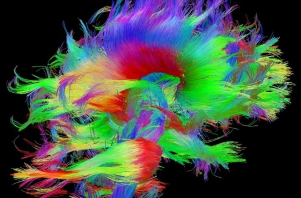 Das US-amerikanische Projekt Human Connectome erforscht die zahlreichen Verbindungen der Nervenzellen untereinander. In den farbigen Beispielbildern lässt sich die Komplexität des Gehirns erahnen. Foto: www.humanconnectomeproject.org