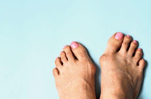 Wenn die Füße schmerzen