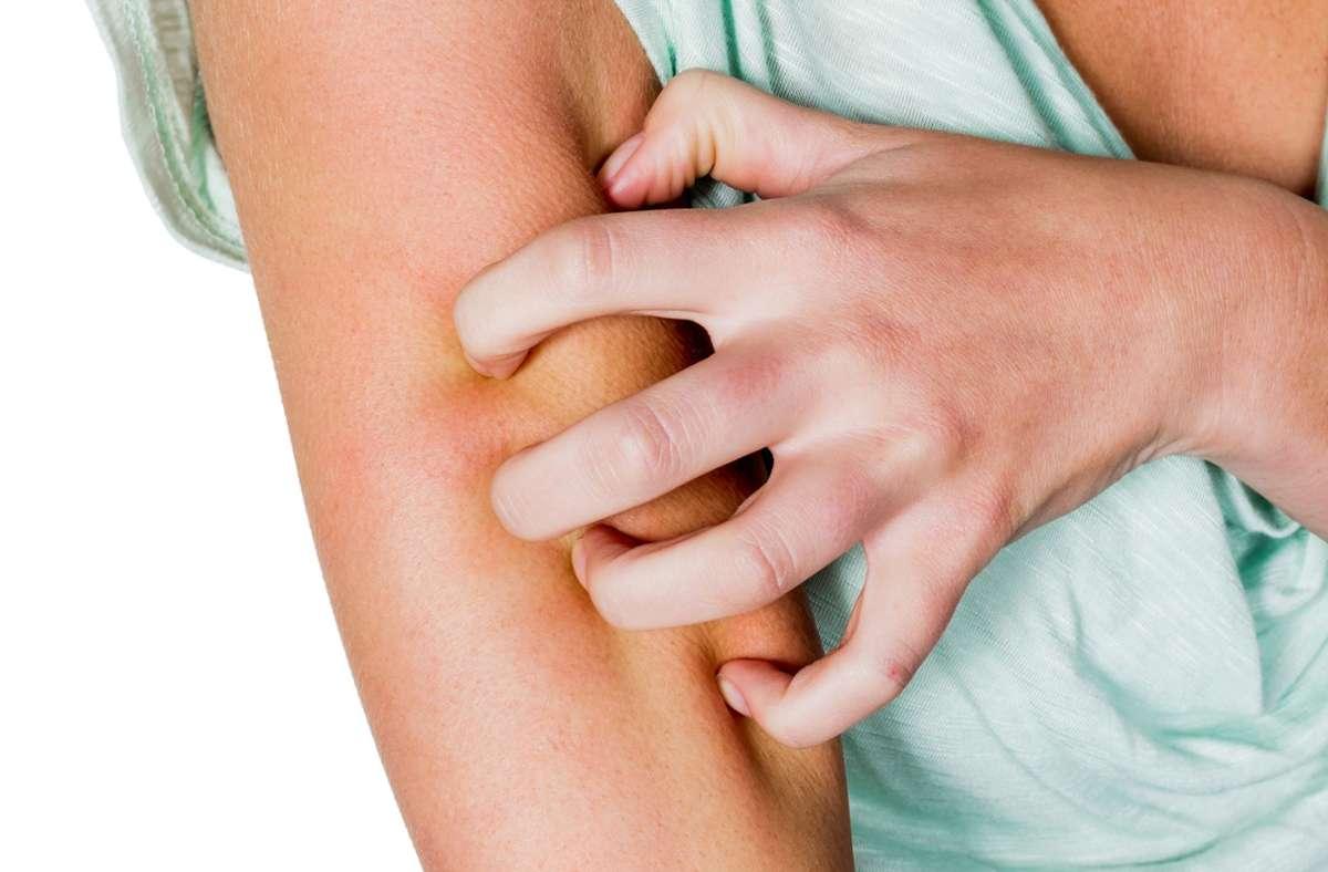 Bei Neurodermitis juckt die Haut oft unerträglich. Foto: imago images/blickwinkel