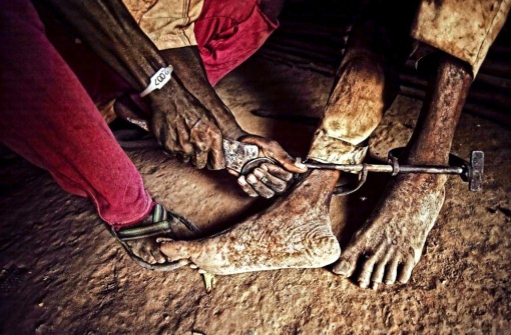 Nach vielen Jahren Gefangenschaft entfernt  der  Bruder eines psychisch Kranken die Eisenstange zwischen dessen Knöcheln. Foto: Heinz Heiss