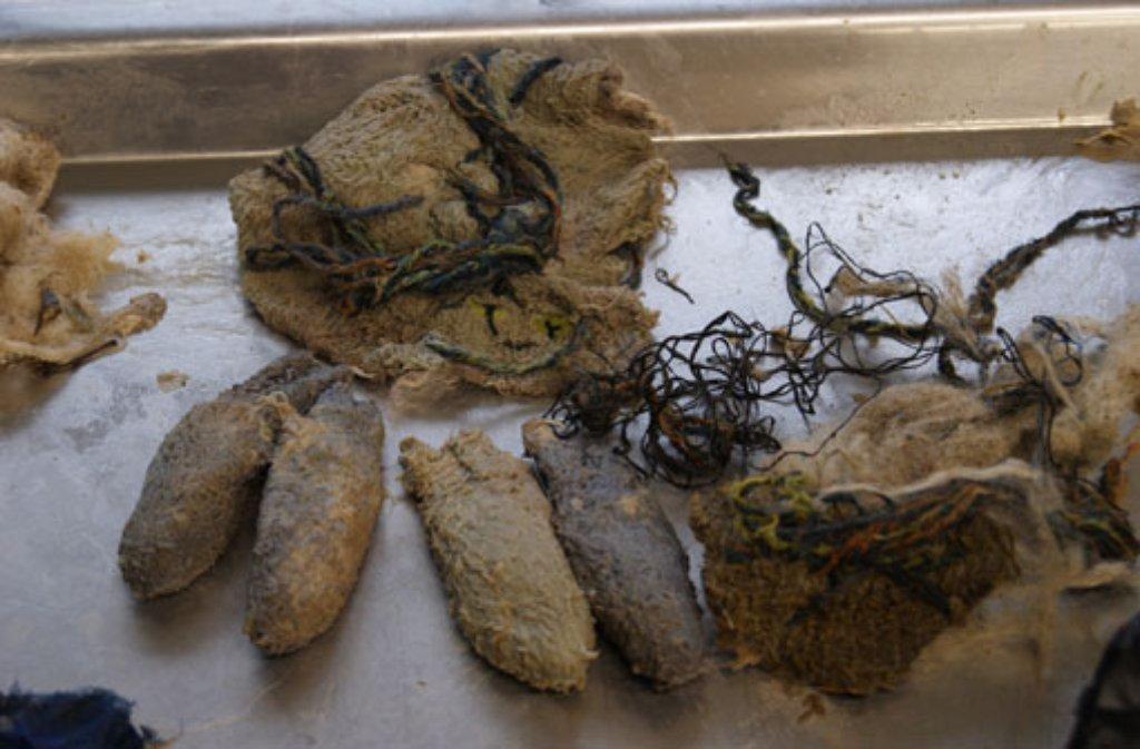 Diese Gegenstände wurden im Magen- und Darmtrakt des Eisbären Anton gefunden. Foto: Wilhelma Stuttgart