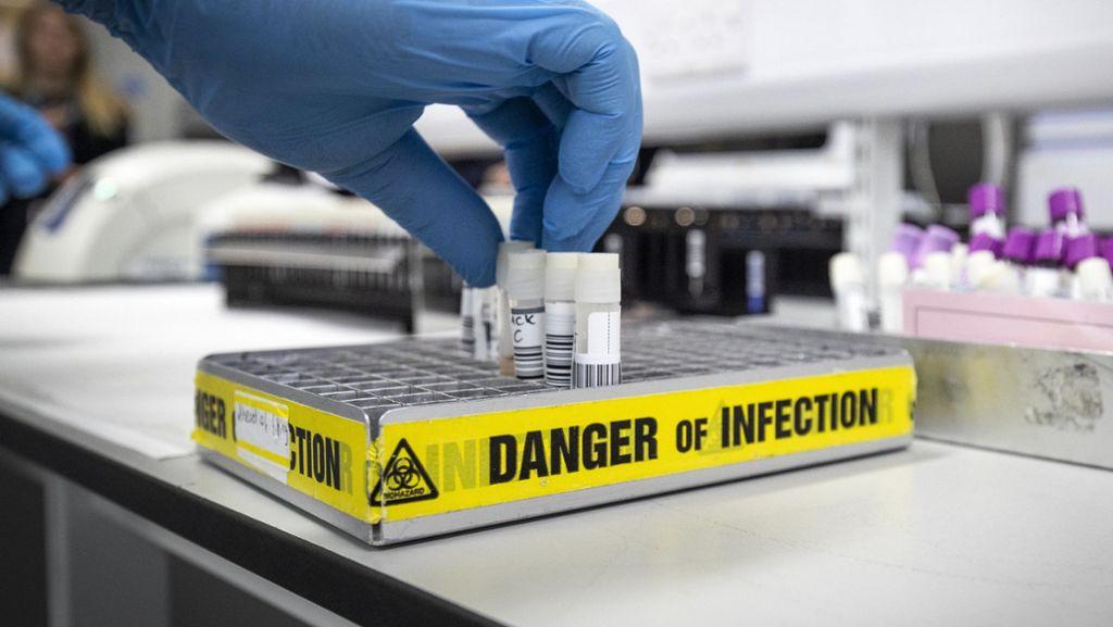 Erste Infektion mit Coronavirus in Baden-Württemberg bestätigt