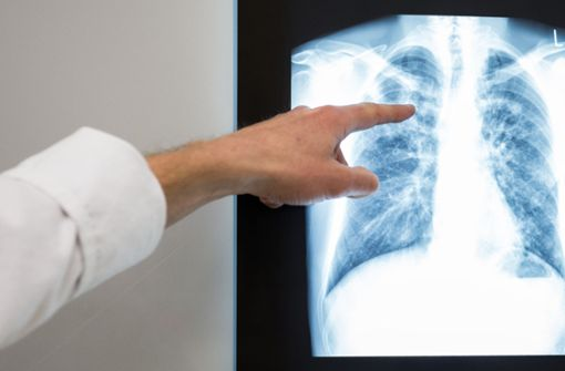 So fies spottet das Netz über 100 Lungenärzte