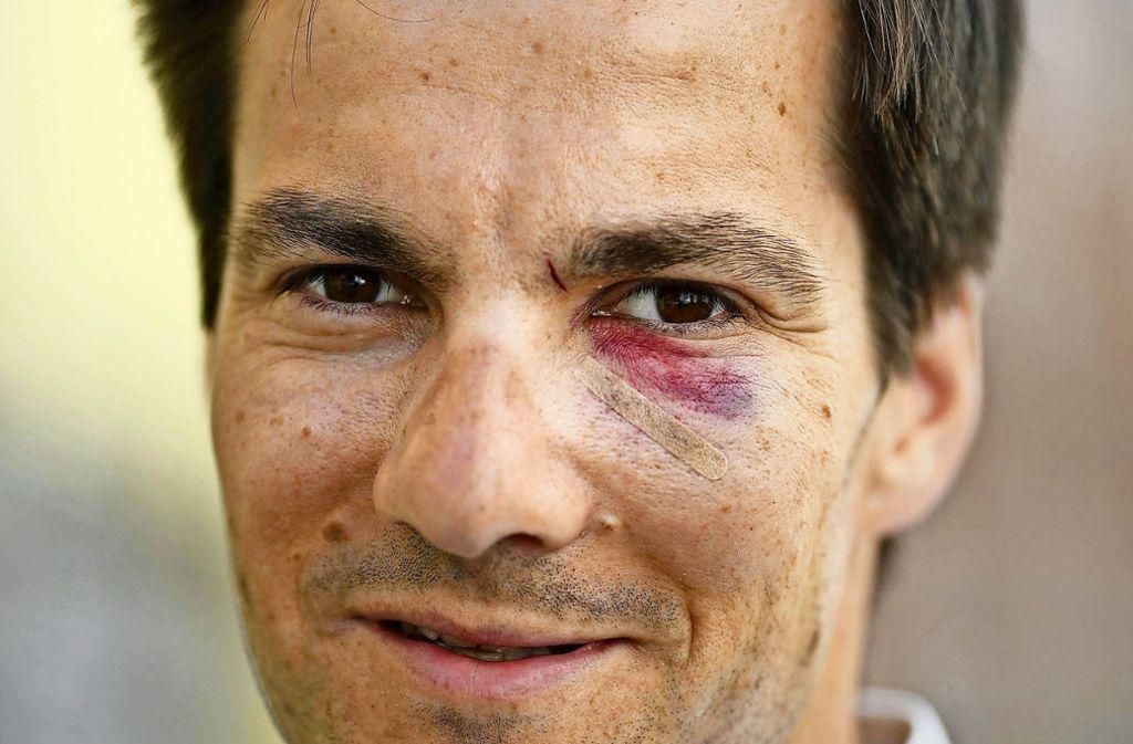 Ein Veilchen nach dem Angriff: der Auftakt zu seinem  Amt als OB in Freiburg war für Martin Horn  durchaus schmerzhaft. Foto: dpa
